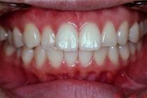 盛岡, 歯科,ホワイトニング