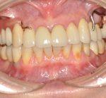 補綴・義歯治療 | メタルオクルーザルの上顎金属義歯