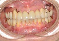 メタルオクルーザルの金属床義歯