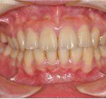 矯正歯科・小矯正治療 | 上下4本抜歯全顎矯正治療Ⅱ級