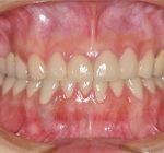 審美歯科治療 | オールセラミック治療